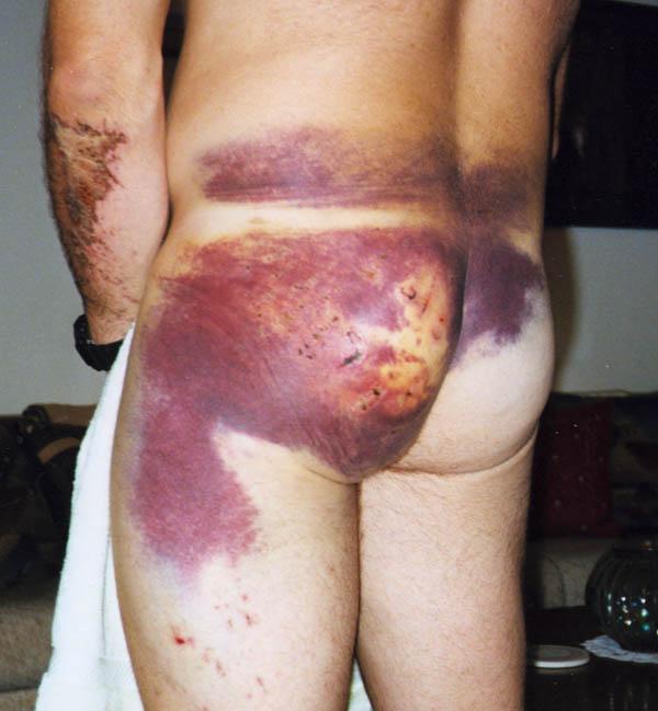 Bruise Butt 98